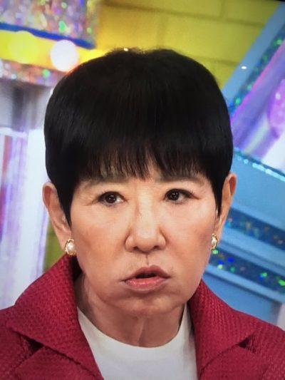 和田アキ子 整形